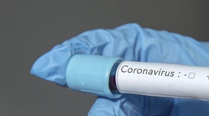 koronavirus-yeni-zelanda-bitti